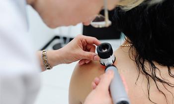 Диагностика новообразований кожи