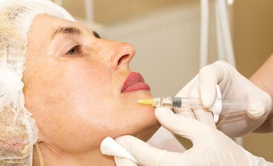 Коррекция опущения углов рта